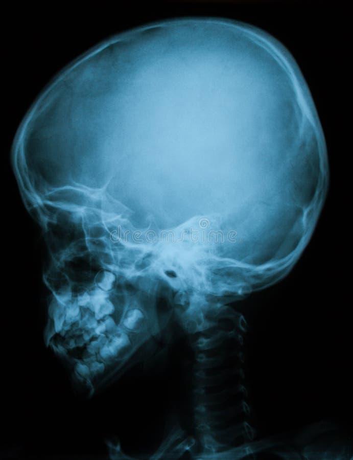 Röntgenstrålebild av skallen, sidosikt royaltyfri fotografi