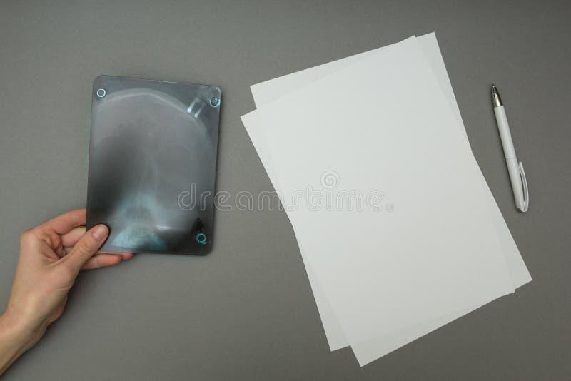 Röntgenstrålebild nära ett tomt ark av papper royaltyfri foto