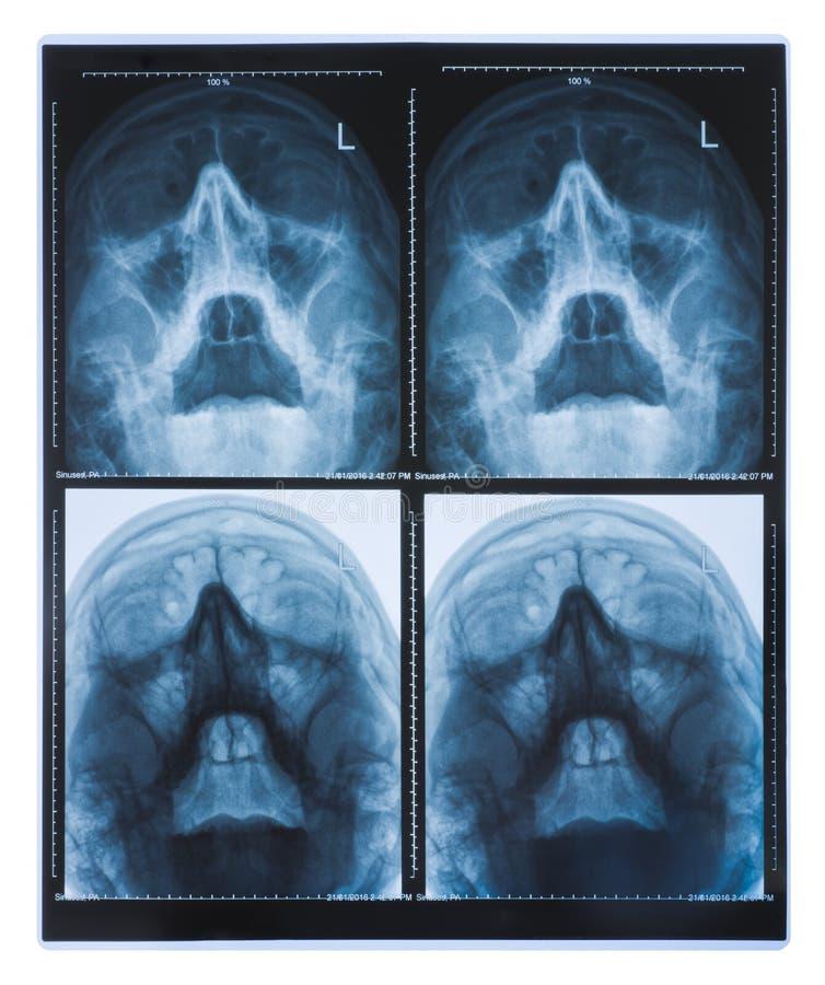 Röntgenstrålebilder av den mänskliga skallen som isoleras på vit bakgrund royaltyfri bild