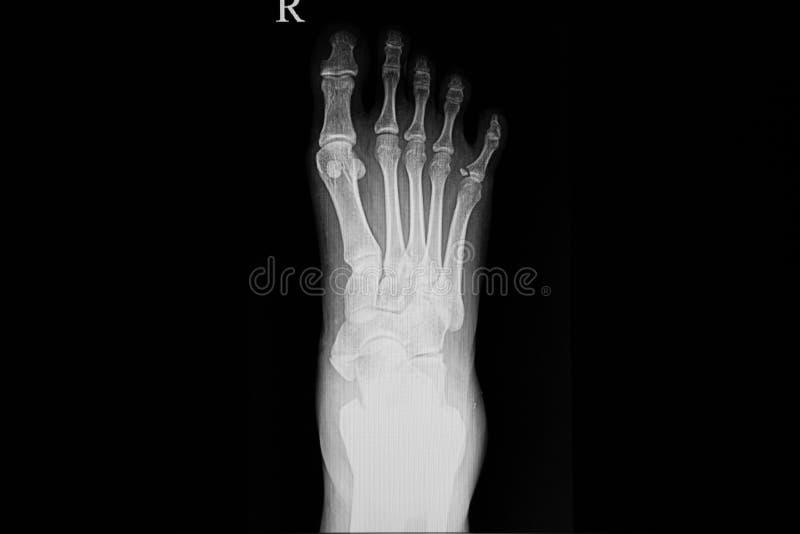 Röntgenstrålefilm av en fot av patienten royaltyfria foton