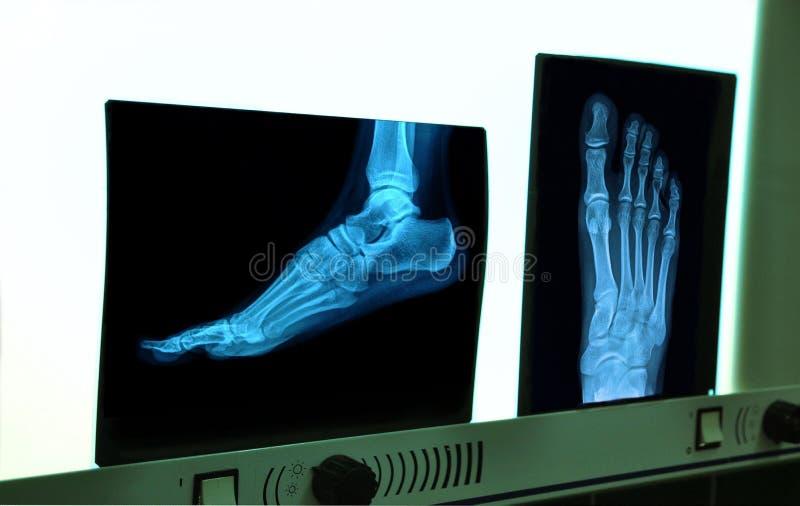 röntgenstrålefot fotografering för bildbyråer