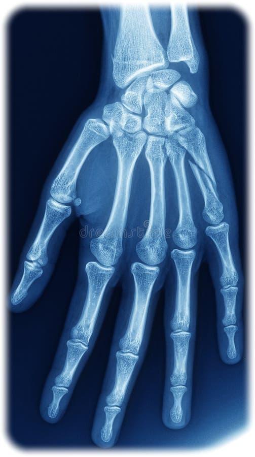 Röntgenstrålehand royaltyfri illustrationer