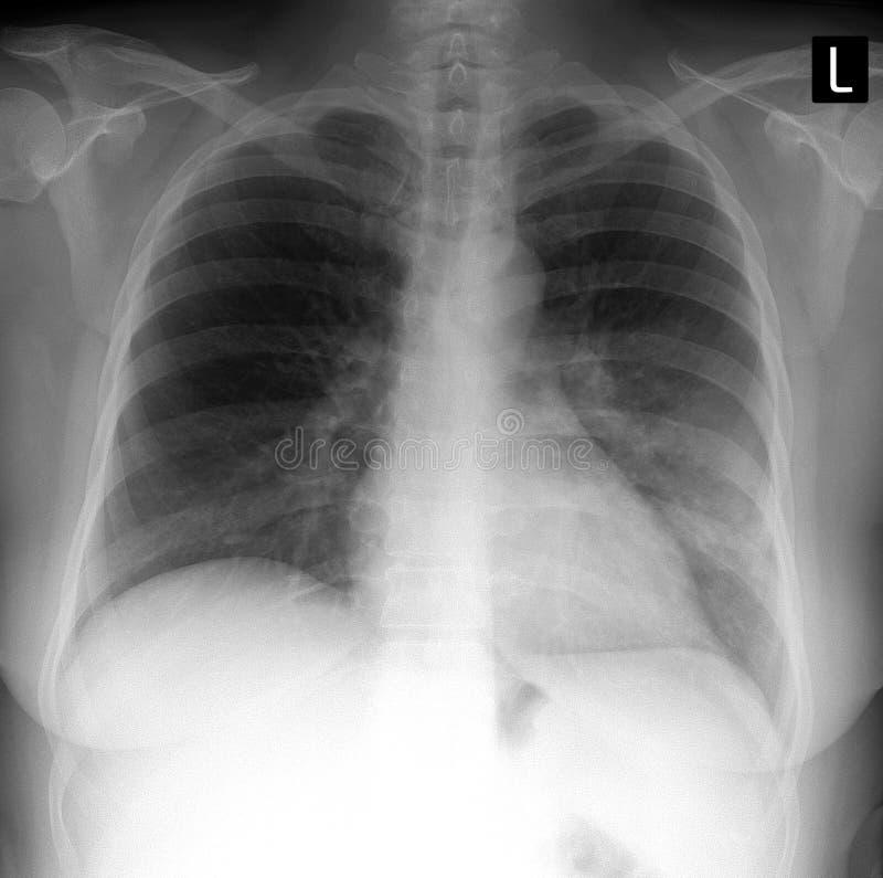 Röntgenstrålelunga visa ett stort infiltrera i den vänstra lungan lunginflammation arkivfoton