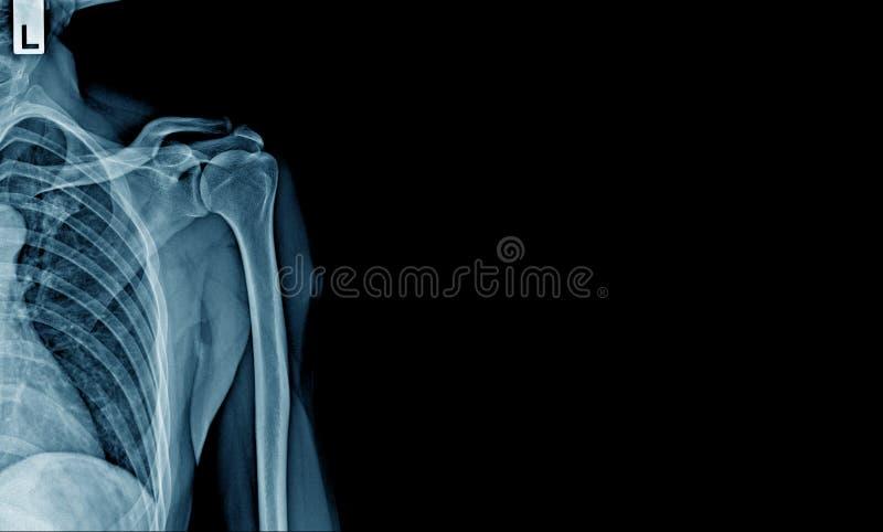 Röntgenstråleshouderbaner royaltyfri foto