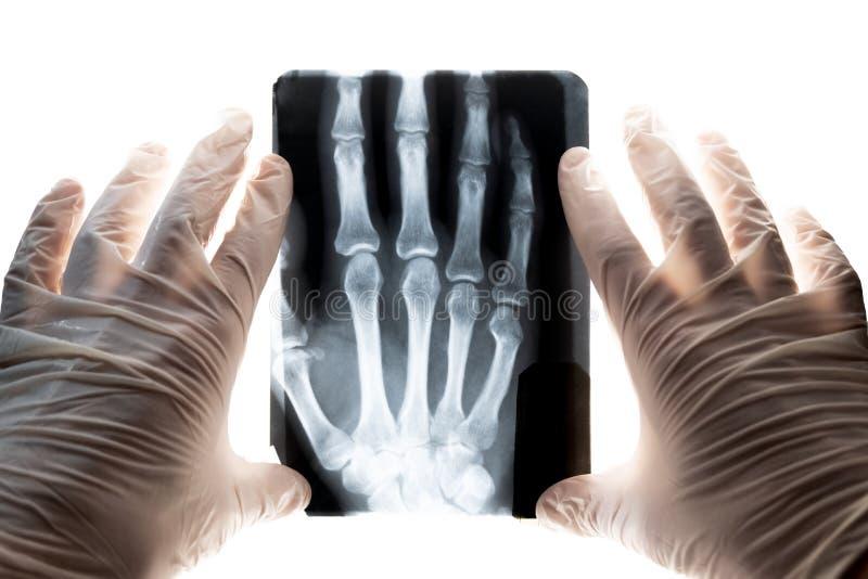 Röntgenstråleskott av handen i händerna av doktorn i vita handskar Begreppsbrott av fingret och förskjutningen av skarvarna royaltyfria bilder