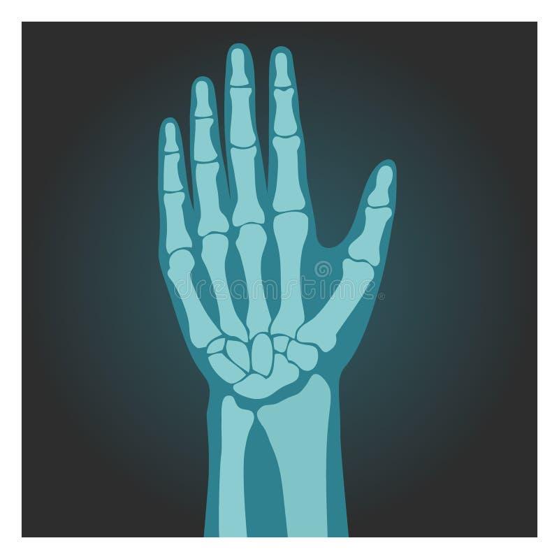 Röntgenstråleskott av handleden, människokropp, ben av handen, röntgenfotografering, vektorillustration royaltyfri illustrationer