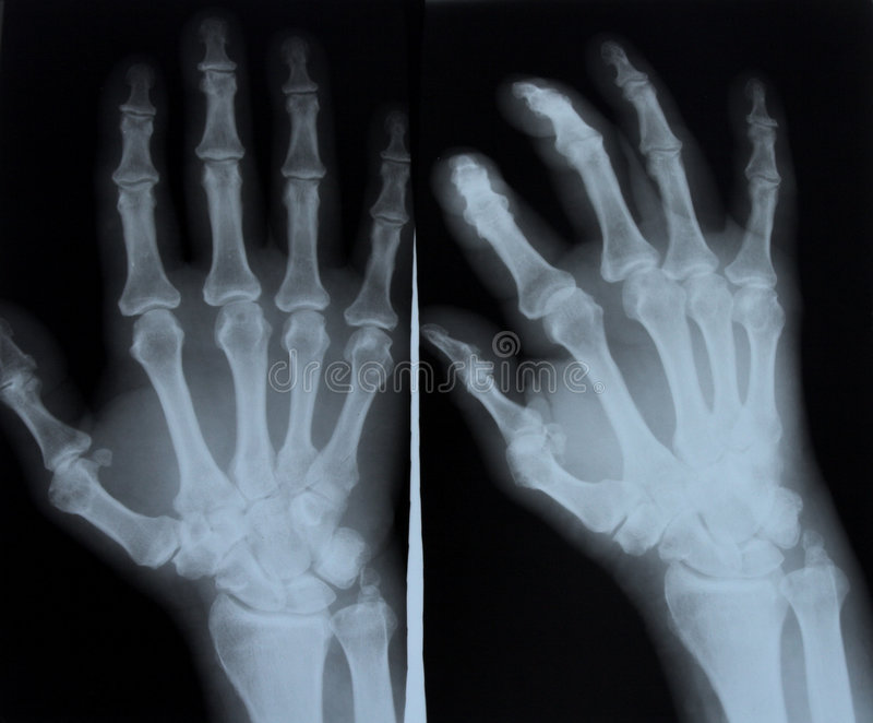 Röntgenstraal stock afbeeldingen
