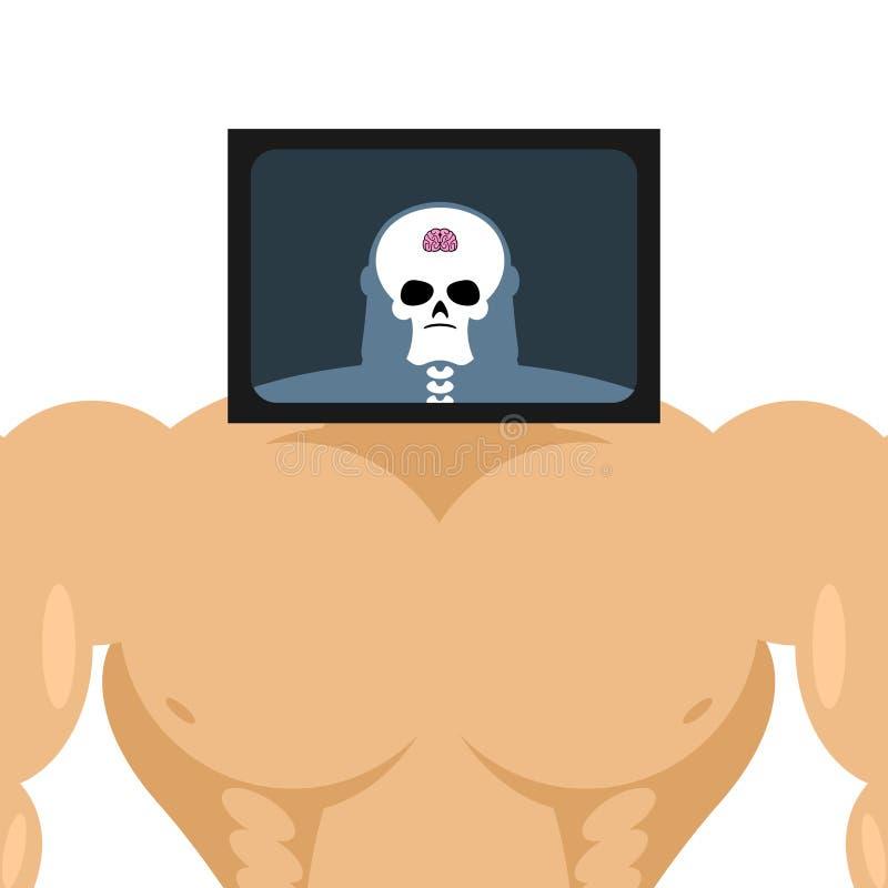 Röntgenstraal hoofdbodybuilder grote spieren en kleine hersenen Structuur vector illustratie