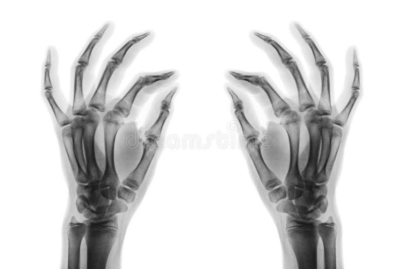 Röntgenstraal normale menselijke handen op witte achtergrond Schuine mening stock afbeeldingen