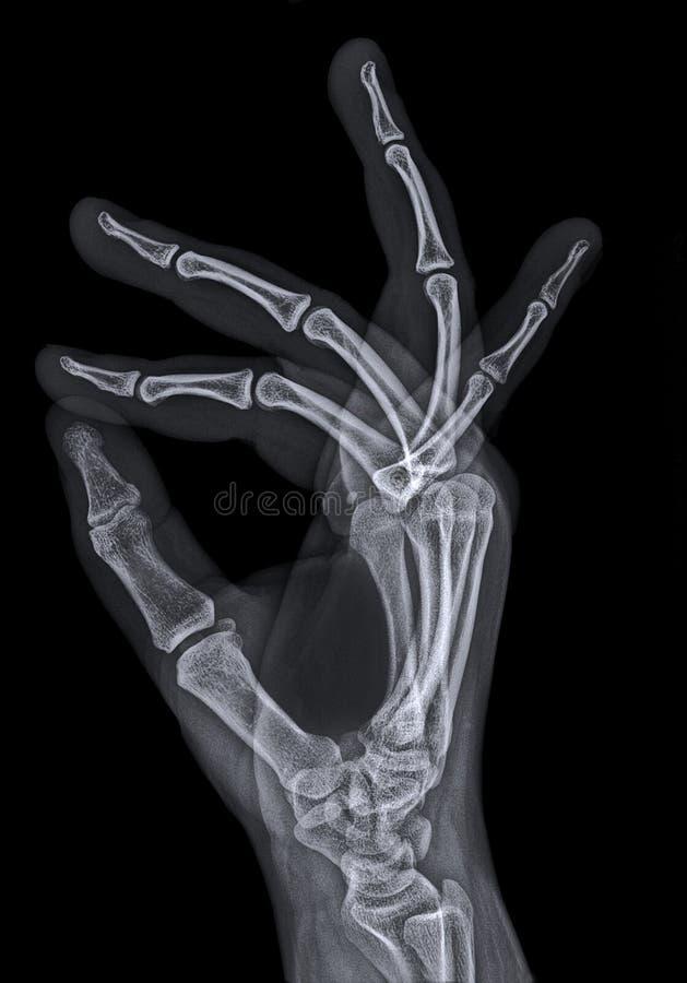 Röntgenstraal of röntgenfoto van hand royalty-vrije stock foto's