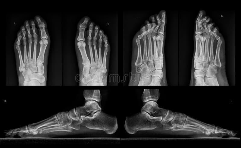 Röntgenstraal van beide voeten in drie projecties stock foto's