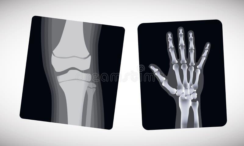 Röntgenstraal van de hand en de voet Vector stock illustratie