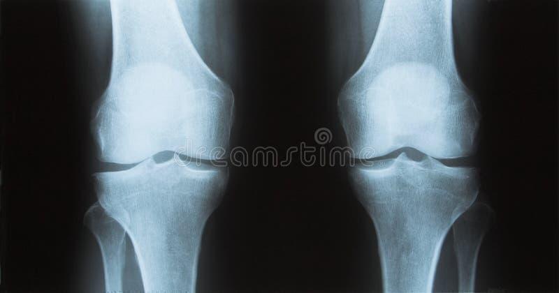 Röntgenstraal van de knie royalty-vrije stock afbeeldingen