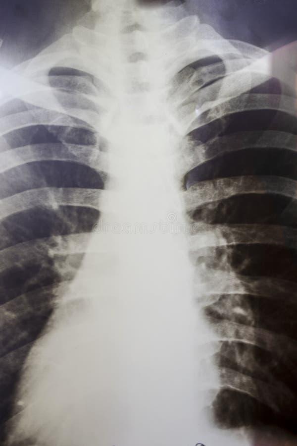 Röntgenstraal van een menselijk borst of van de longenradiografie schot stock afbeeldingen