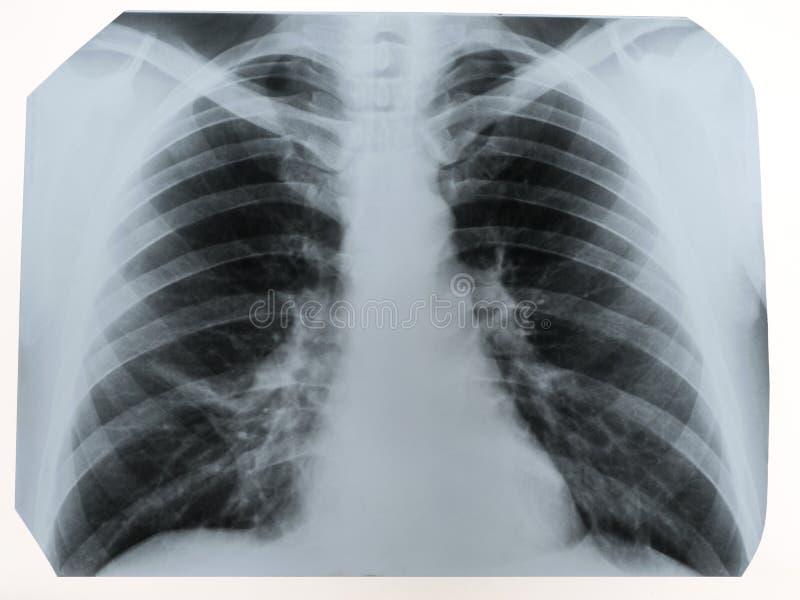 Röntgenstraal van een menselijke borst of geschotene longen een radiografie, een medische techno royalty-vrije stock afbeeldingen