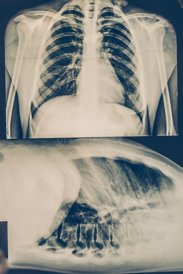 Röntgenstraal van een menselijke borst of geschotene longen een radiografie, een medische technologie en een röntgenkliniek kenme stock foto's