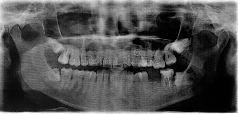 Röntgenstraal van een mond van de 50 éénjarigenvrouw ` s in perspectief 360 orthopantomogram royalty-vrije stock afbeeldingen