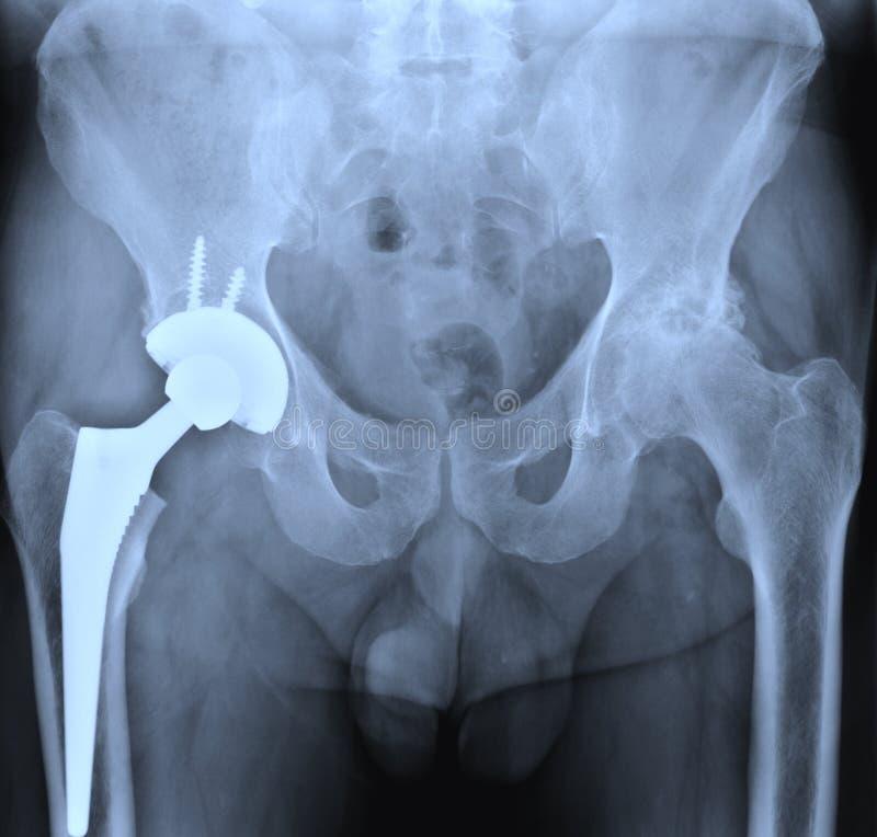 Röntgenstraal van heupprostesis stock foto's