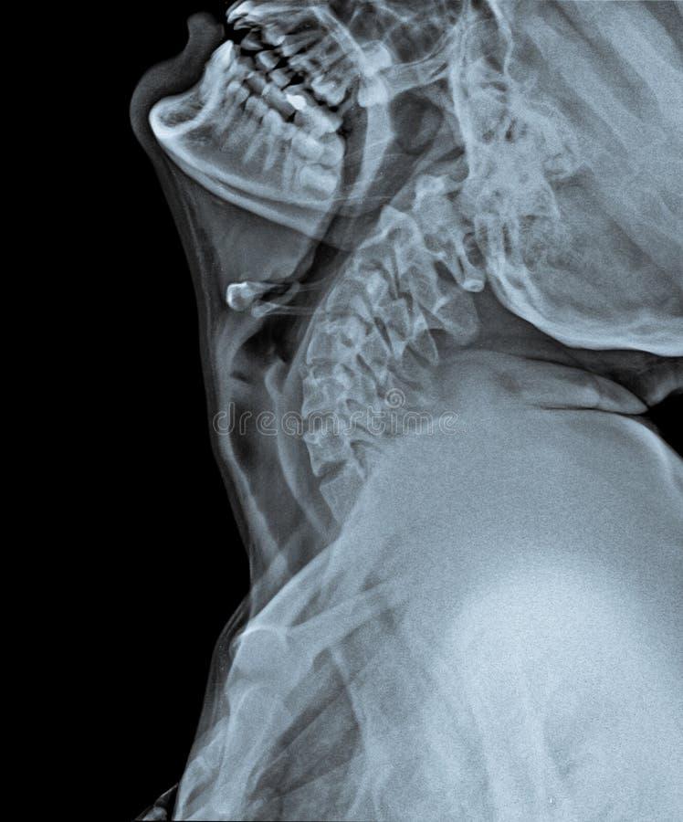 Röntgenstraal van Schedel met kant van hals royalty-vrije stock fotografie
