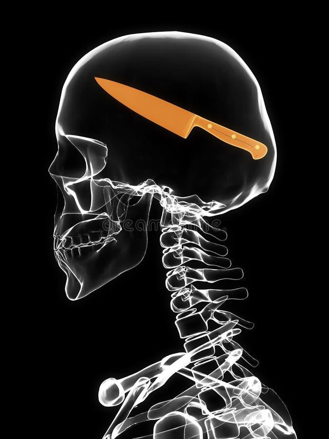 Röntgenstraal van schedel met mes stock afbeelding