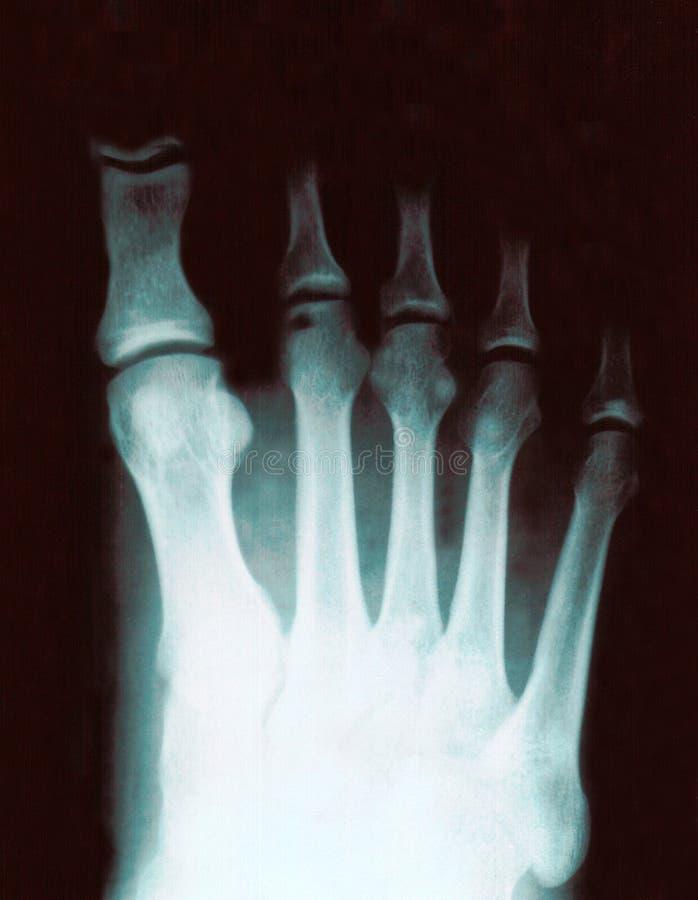Röntgenstraal van voet royalty-vrije stock fotografie