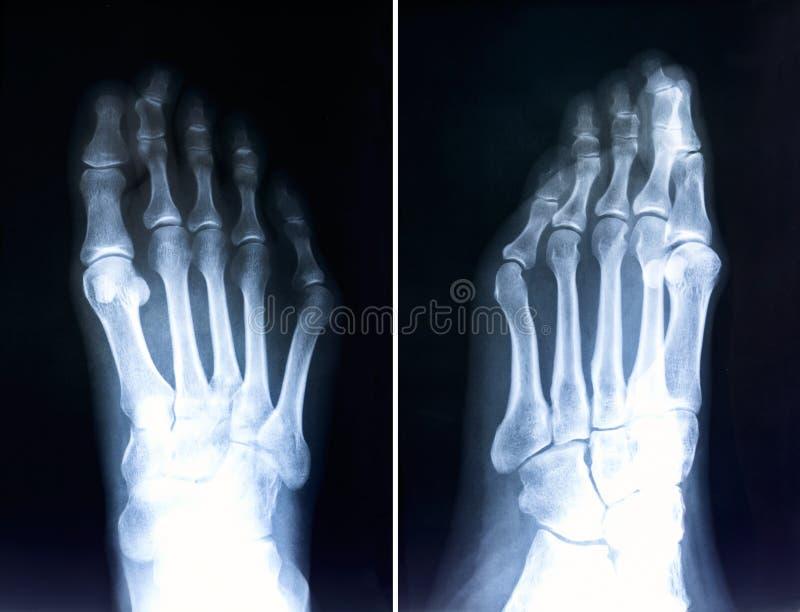 Röntgenstraal van voetvingers Radiografie met misvormde tenen Hallux valg royalty-vrije stock foto's