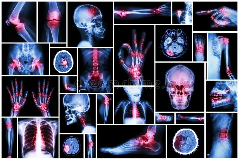 Röntgenstraal veelvoudig deel van mens met veelvoudige ziekte (slag, artritis, jicht, reumatoïde, hersenentumor, osteoartritis, e royalty-vrije stock afbeeldingen