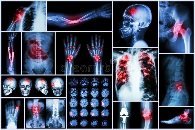 Röntgenstraal veelvoudige ziekte (Slag (hersenongeval): cva, Longtuberculose, Beenbreuk, Schouderdislocatie, Jicht royalty-vrije stock fotografie