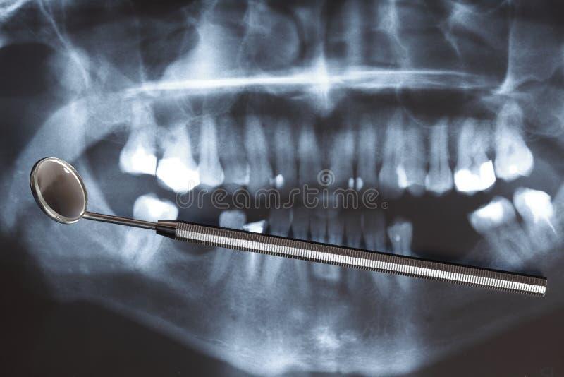 Röntgenstraalaftasten van mensentanden stock fotografie