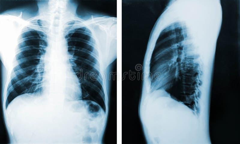 Röntgenstraalbeeld, Mening van borstmensen voor medische diagnose royalty-vrije stock afbeeldingen