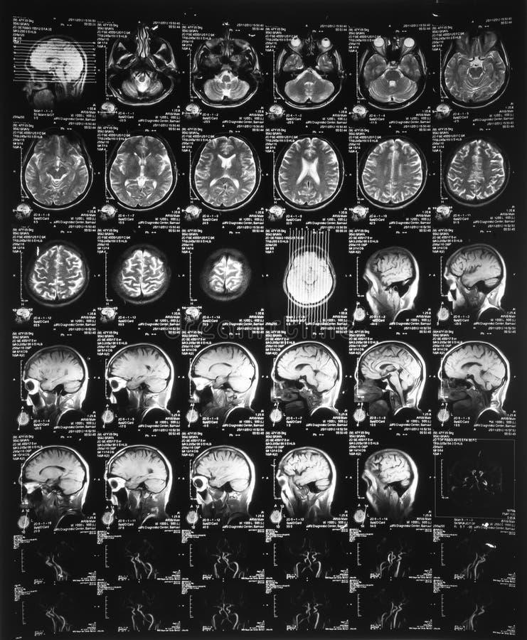 Röntgenstraalbeeld van de hersenen gegevens verwerkte tomografie stock foto
