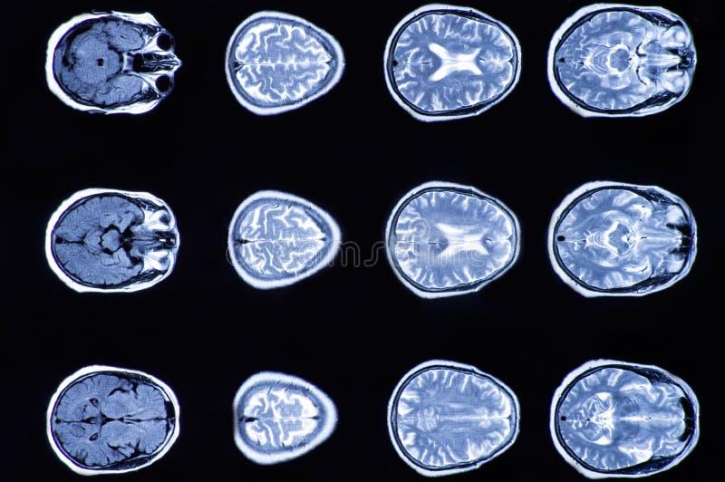 Röntgenstraalbeeld van de hersenen gegevens verwerkte tomografie, weergave van de hersenen royalty-vrije stock foto