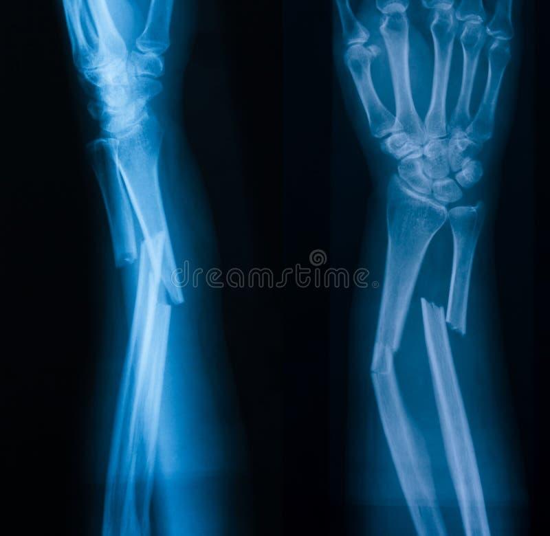 Röntgenstraalbeeld van gebroken voorarm, AP en loblique mening royalty-vrije stock foto