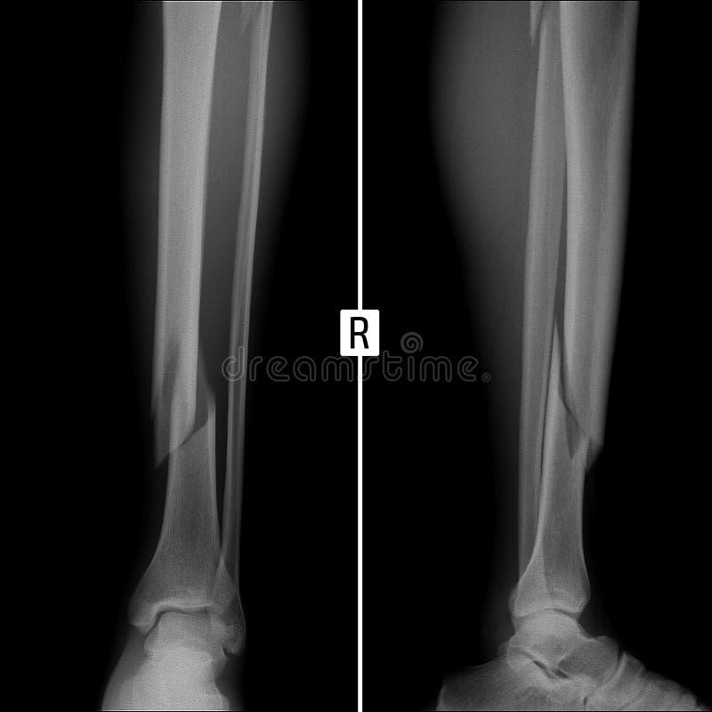 Röntgenstraalbreuk van beide beenderen van het juiste scheenbeen stock foto's