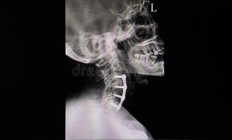 Röntgenstraalfilm van een hals van een patiënt met plaat en schroevenfixations stock afbeeldingen