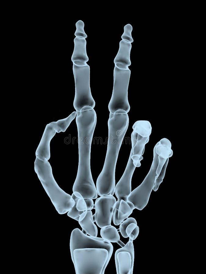 Röntgenstraalhand die overwinningsgebaar maken stock illustratie