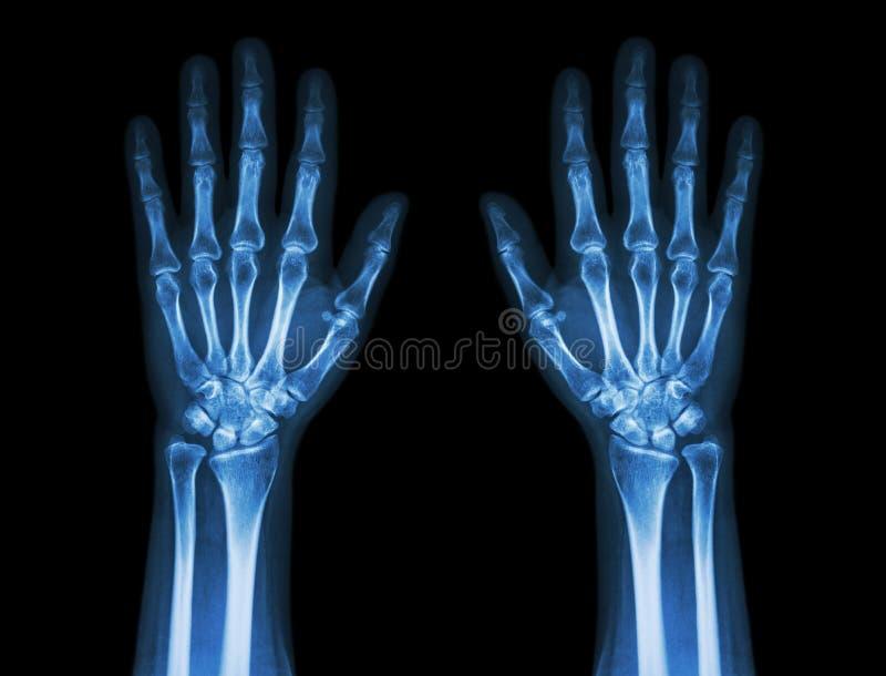 Röntgenstraalhanden (vooraanzicht): Normale menselijke handen stock foto's