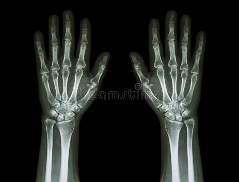 Röntgenstraalhanden (vooraanzicht): Normale menselijke handen royalty-vrije stock afbeeldingen