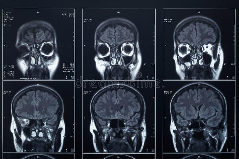 Röntgenstraalhoofd en hersenenradiografie royalty-vrije stock foto's