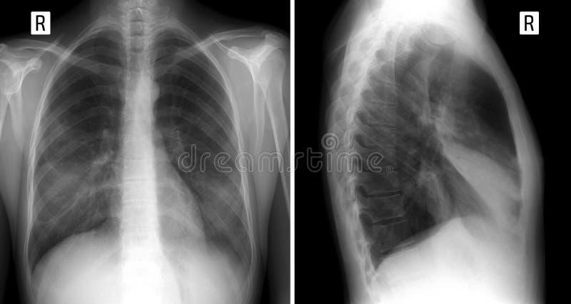 Röntgenstraallong tonend groot infiltreer in de middenkwab van de juiste long longontsteking voor en zijprojectie royalty-vrije stock afbeeldingen
