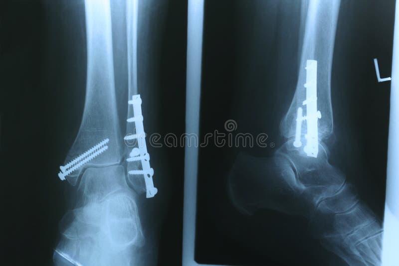 Röntgenstrahl 02 lizenzfreies stockfoto