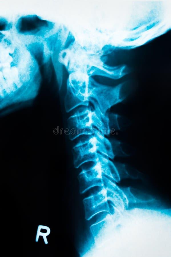 Röntgenstrahl 1 lizenzfreie stockfotos