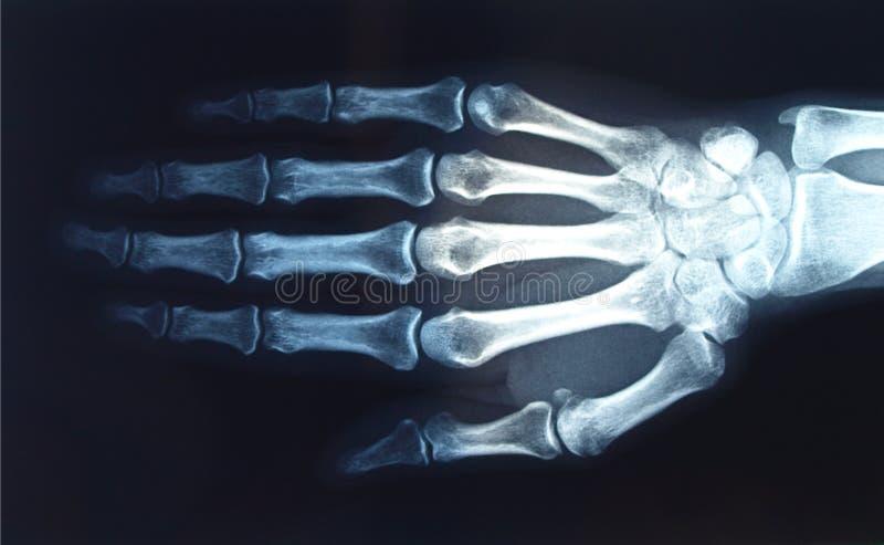 Röntgenstrahl vektor abbildung