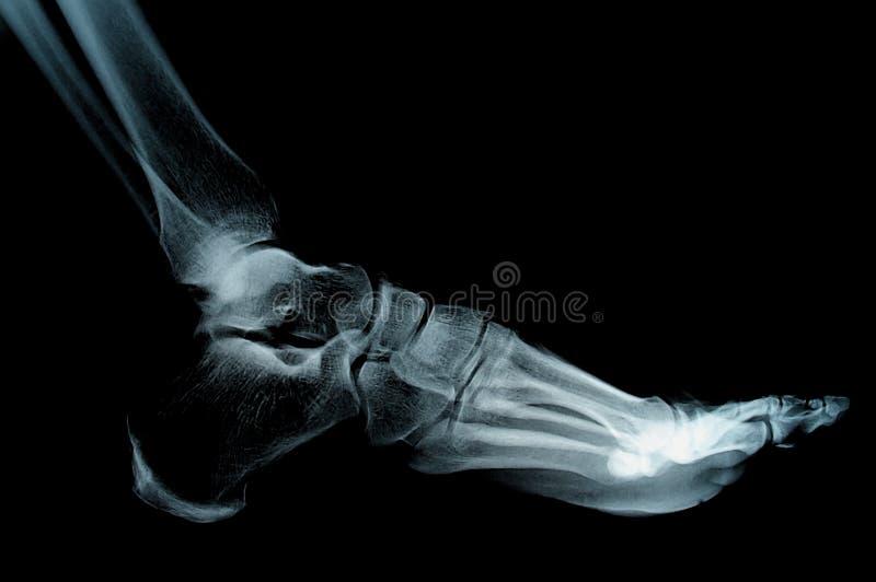 Röntgenstrahl stockfotos