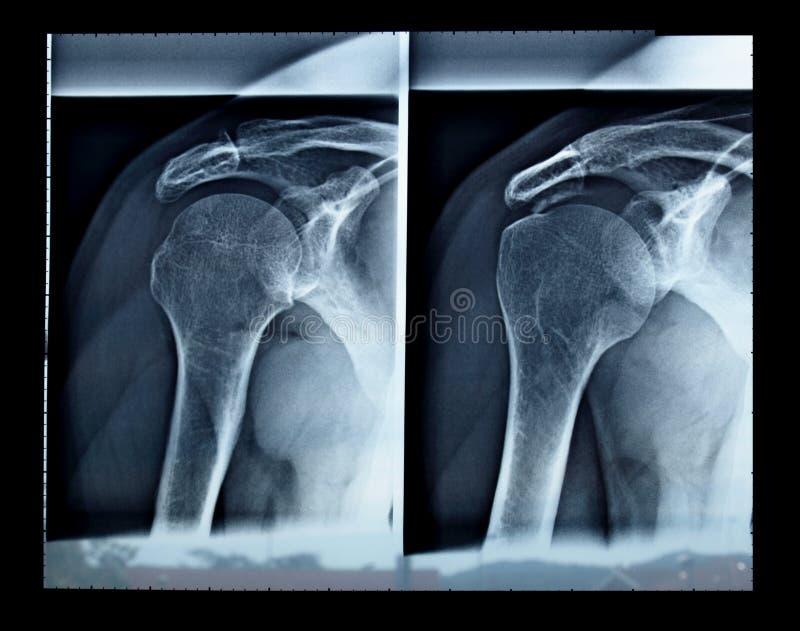 Röntgenstrahl lizenzfreies stockbild