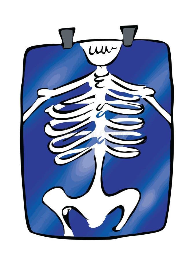 Röntgenstrahl stock abbildung