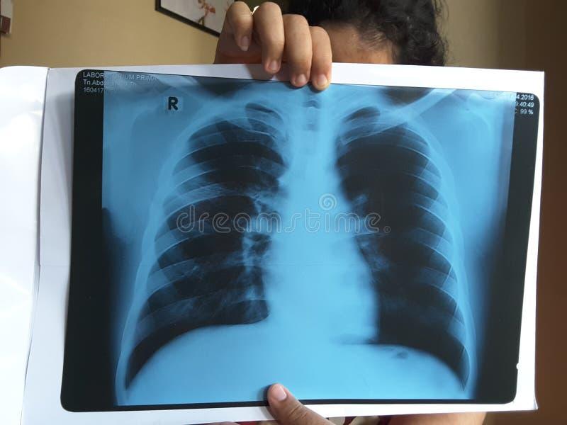 Röntgenstrahl stockfoto