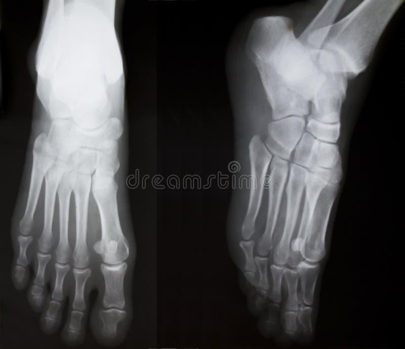 Röntgenstrahl beider menschlichen Füße lizenzfreies stockfoto