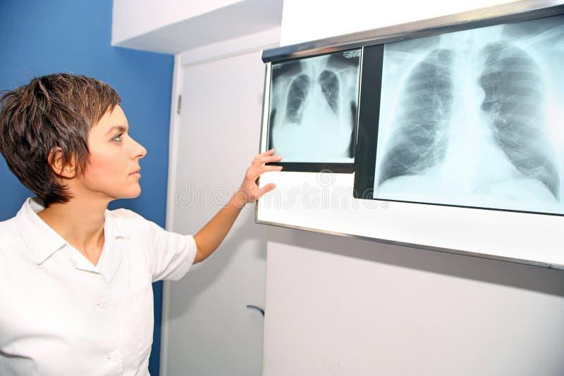 Röntgenstrahl der Lunge, Lungen-embolismPE, Lungenbluthochdruck, C lizenzfreies stockfoto