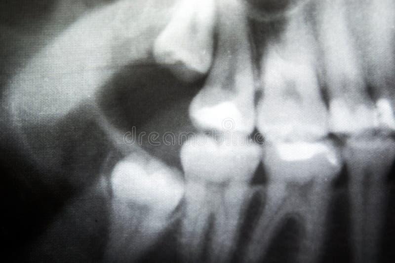 Röntgenstrahl der problematischen Klugheitszähne stockfotografie